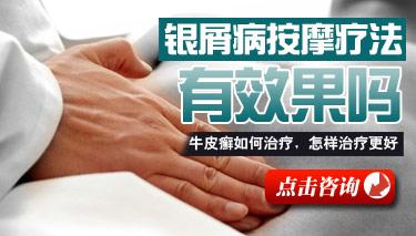 中医治疗足部牛皮癣的方法.jpg