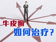 牛皮癣如何治疗 (2).jpg