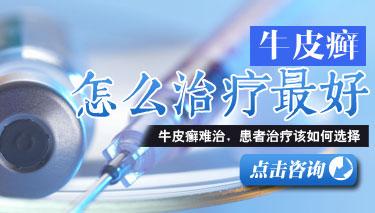 河南郑州市银屑病研究所.jpg