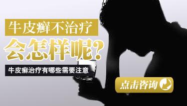 郑州牛皮癣研究所怎么样.jpg