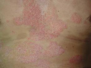 银屑病的早期症状有什么